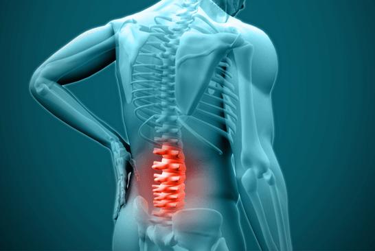 Stufenlage: Heilmittel gegen Rückenschmerzen